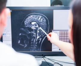 FHPMCO-Santé-IA-Tumeur-Cerveau-Cancer