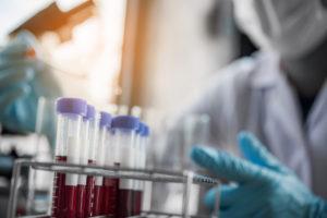 FHPMCO-Virus-Sida-MST-VIH-Science-Santé-recherche